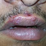 tongue herpes images