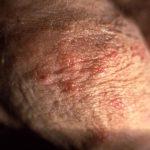 herpes symptoms in men first outbreak
