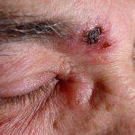facial herpes symptoms