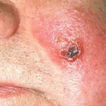 herpes on cheek of face