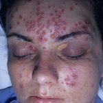 herpes facial rash
