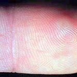 herpes pictures hands