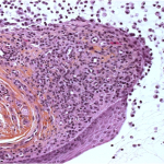 mucous cyst