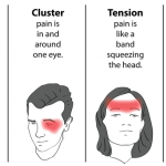 headache over left eye