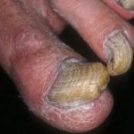 feet fungus images