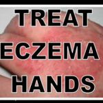 eczema on hands images