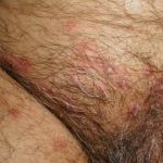 genital herpes early stage pictures