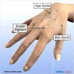 freckles vs sun spots