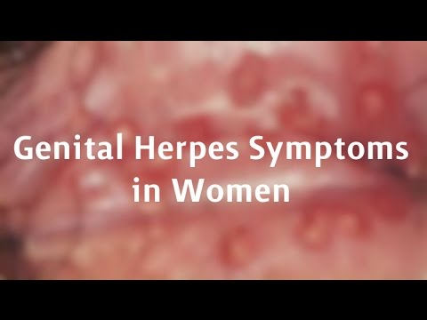 pictures of genital herpes in females - pictures, photos