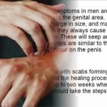 herpe symptoms in men pictures
