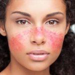 skin lupus