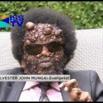 weird skin diseases