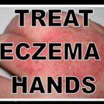 eczema on hands pics