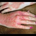 how to treat dyshidrotic eczema