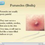 scalp folliculitis cure