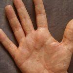 little bumps on hands