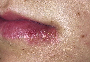 Rash Around Mouth And Chin Pictures Photos