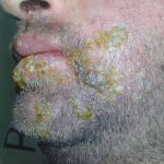 herpes simplex pictures