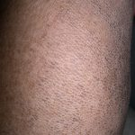 ichthyosis vulgaris pictures