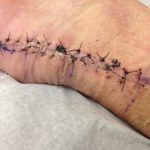 pictures of stitches
