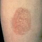 diabetic skin conditions pictures