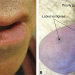 brown spot on lip