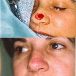 melanoma removal