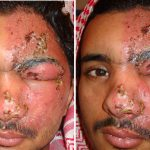 cellulitis in the face
