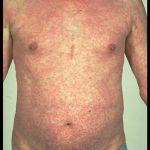 can antibiotics cause rash