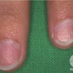 fingernail changes