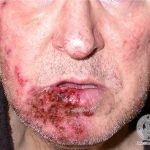 herpes breakout on face