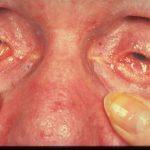 benign mucous membrane pemphigoid