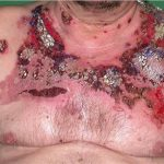pemphigus vulgaris images