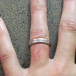 ring rash on finger