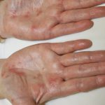 shingles on palm of hand