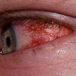 allergic conjunctivitis treatment