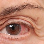 redness around eyelid