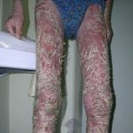 inverse psoriasis treatment