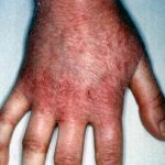 irritant contact dermatitis