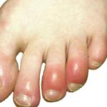 red rash on top of feet