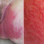 itchy vulva