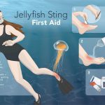 jellyfish sting first aid