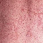 latex rash