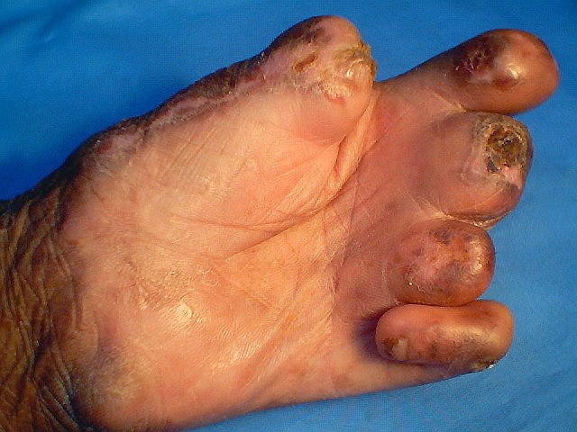 Leprosy Pictures Pictures Photos
