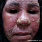 steroid induced rosacea