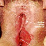 vulvar fissures