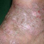 lichen simplex chronicus causes