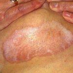 diabetes skin lesion