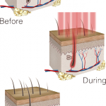 low level light therapy hair loss