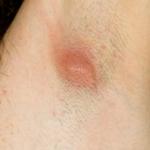 lump under skin on arm